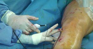 Anciana con diabetes le amputan la pierna equivocada